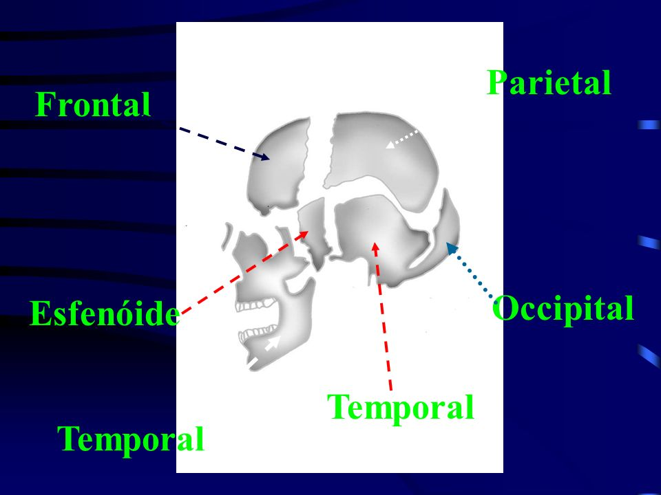 Frontal Parietal Temporal Occipital Esfenóide