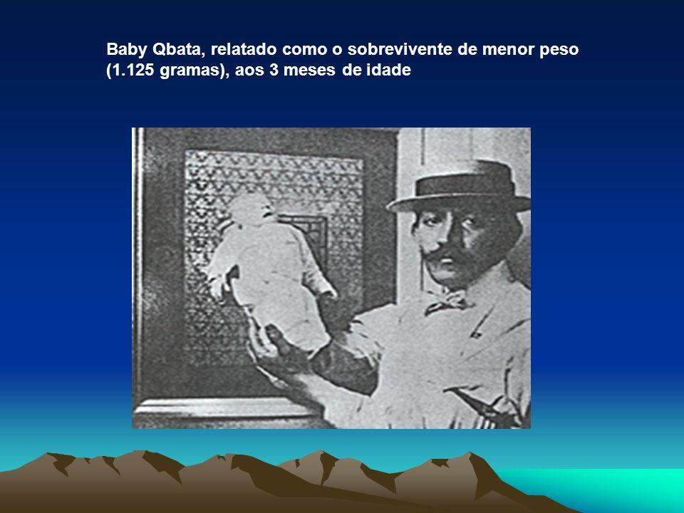 Baby Qbata, relatado como o sobrevivente de menor peso (1