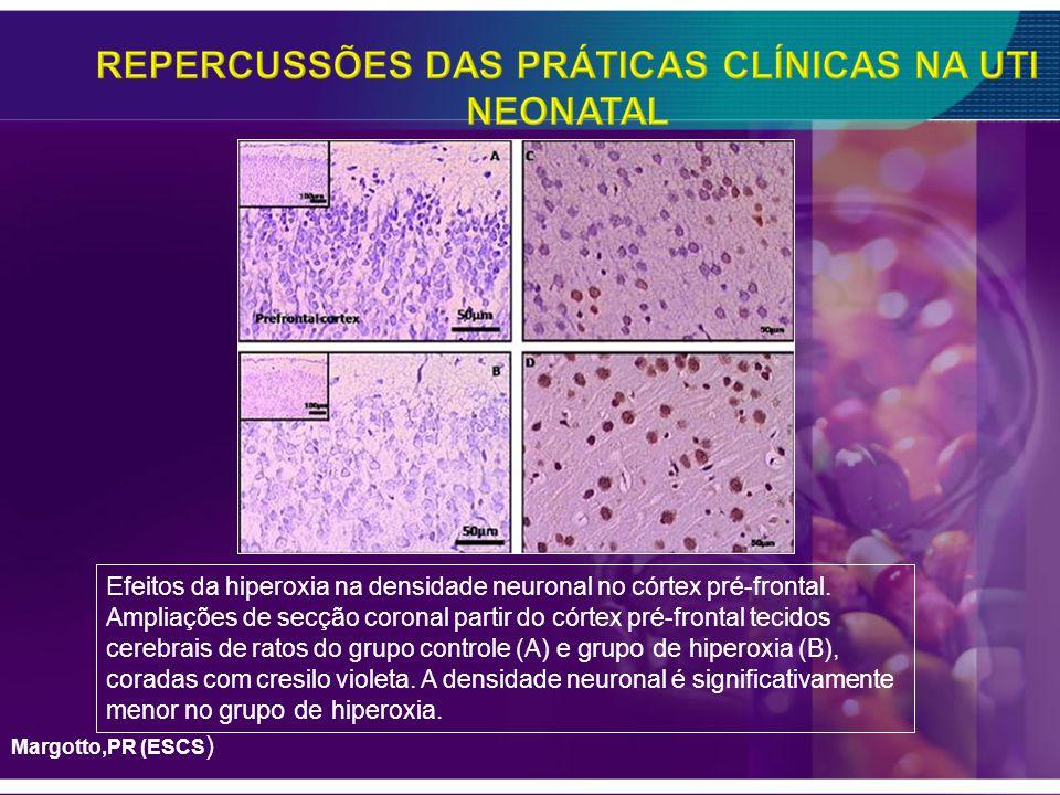 Efeitos da hiperoxia na densidade neuronal no córtex pré-frontal