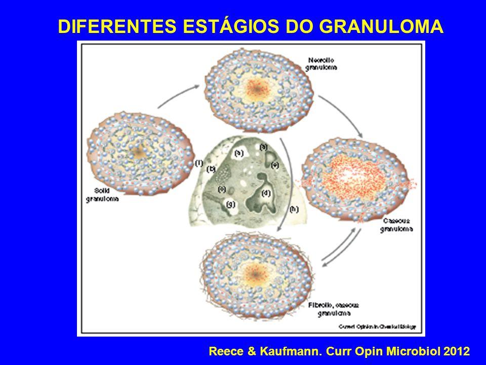 DIFERENTES ESTÁGIOS DO GRANULOMA