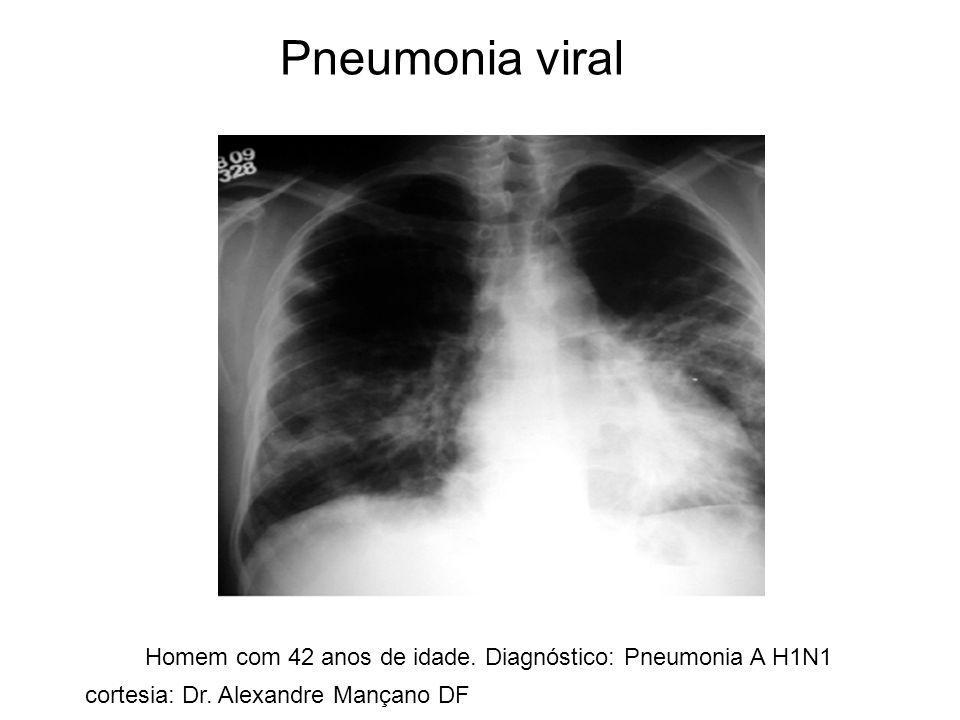 Pneumonia viral Homem com 42 anos de idade. Diagnóstico: Pneumonia A H1N1.