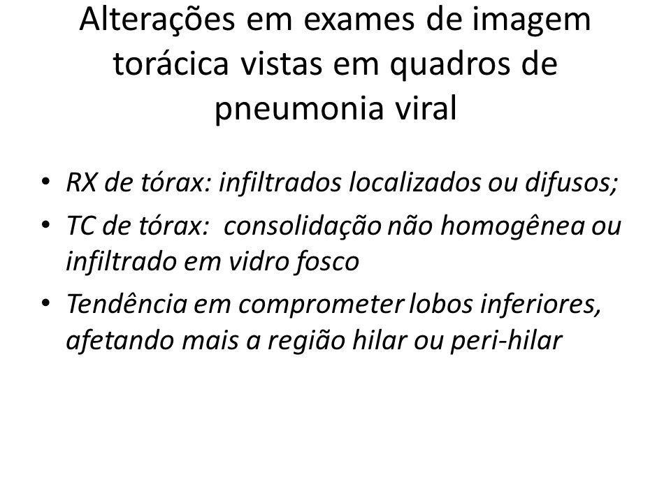 Alterações em exames de imagem torácica vistas em quadros de pneumonia viral