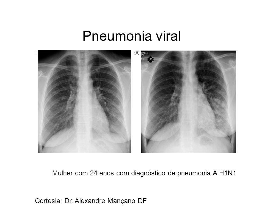 Pneumonia viral Mulher com 24 anos com diagnóstico de pneumonia A H1N1