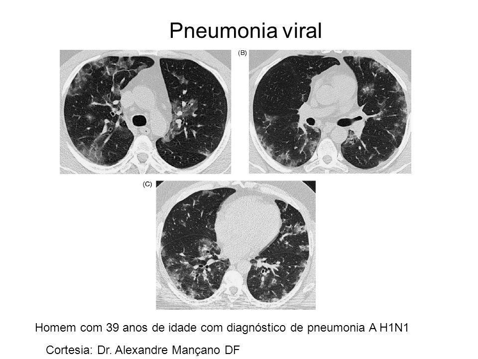Pneumonia viral Homem com 39 anos de idade com diagnóstico de pneumonia A H1N1.