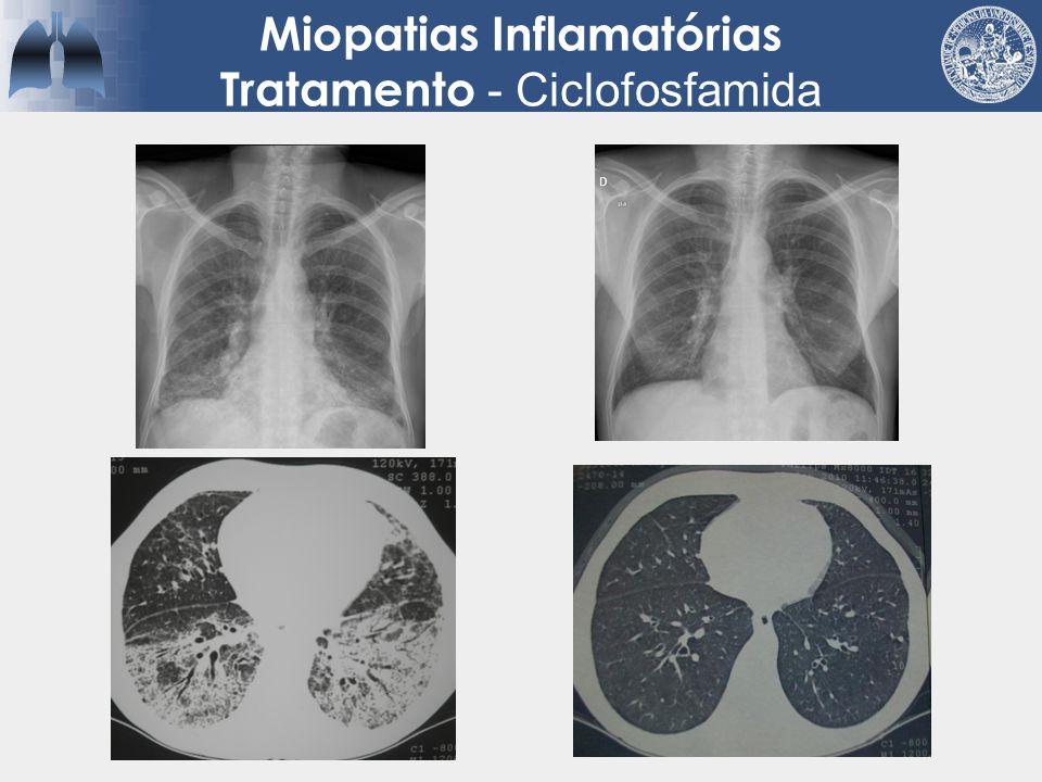 Miopatias Inflamatórias Tratamento - Ciclofosfamida