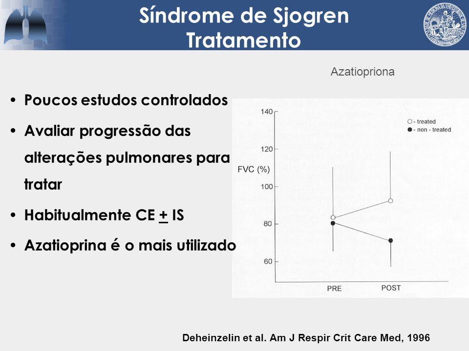 Síndrome de Sjogren Tratamento