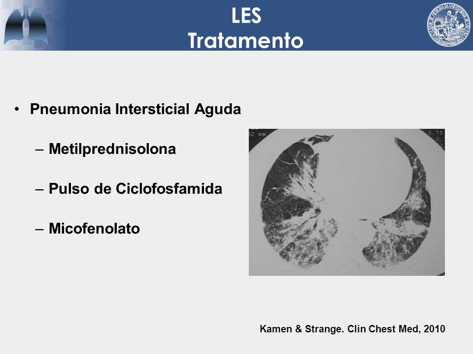 LES Tratamento Pneumonia Intersticial Aguda Metilprednisolona