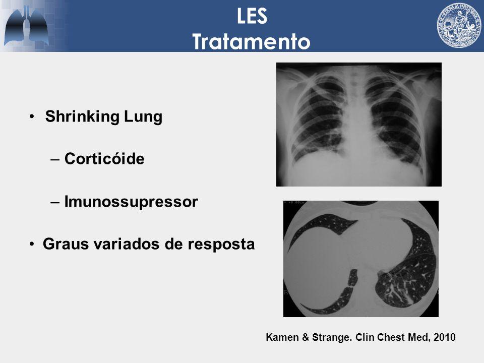 LES Tratamento Shrinking Lung Corticóide Imunossupressor