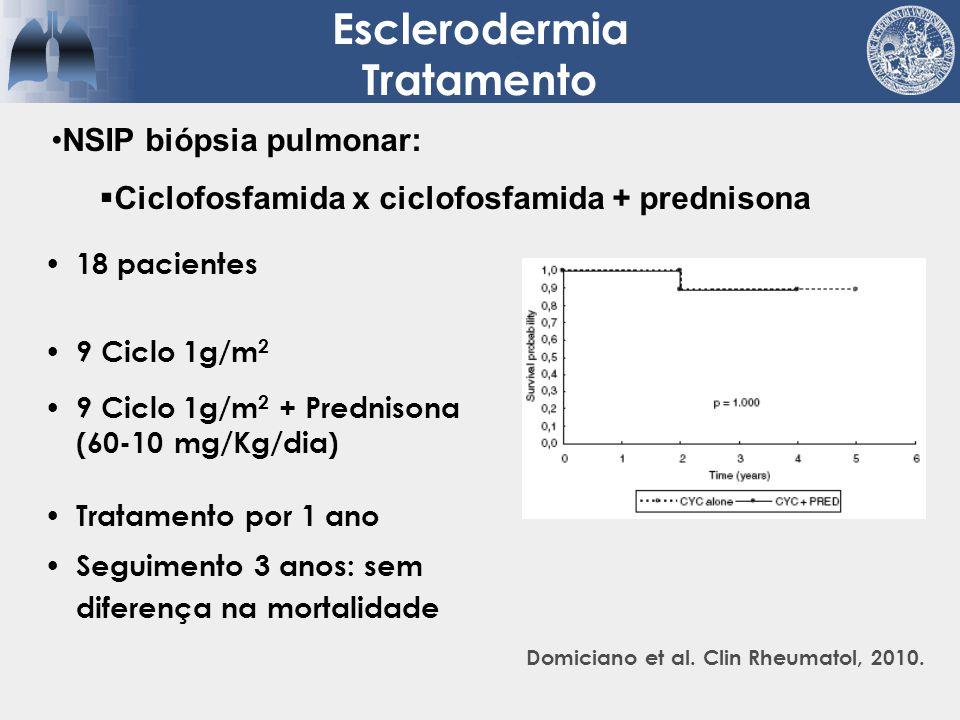 Esclerodermia Tratamento