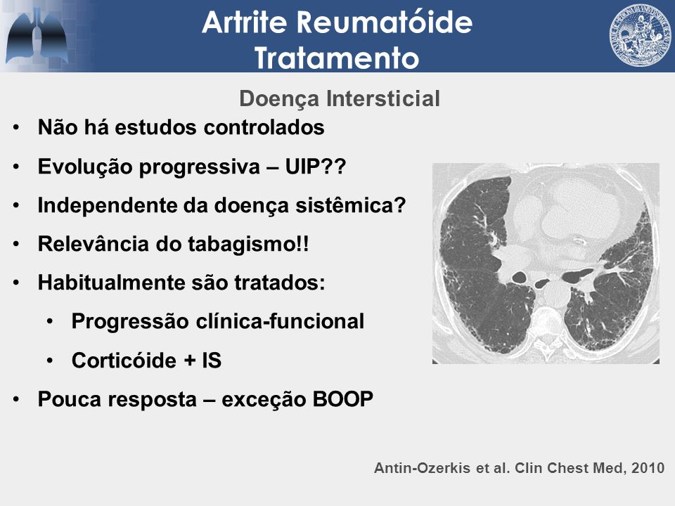 Artrite Reumatóide Tratamento
