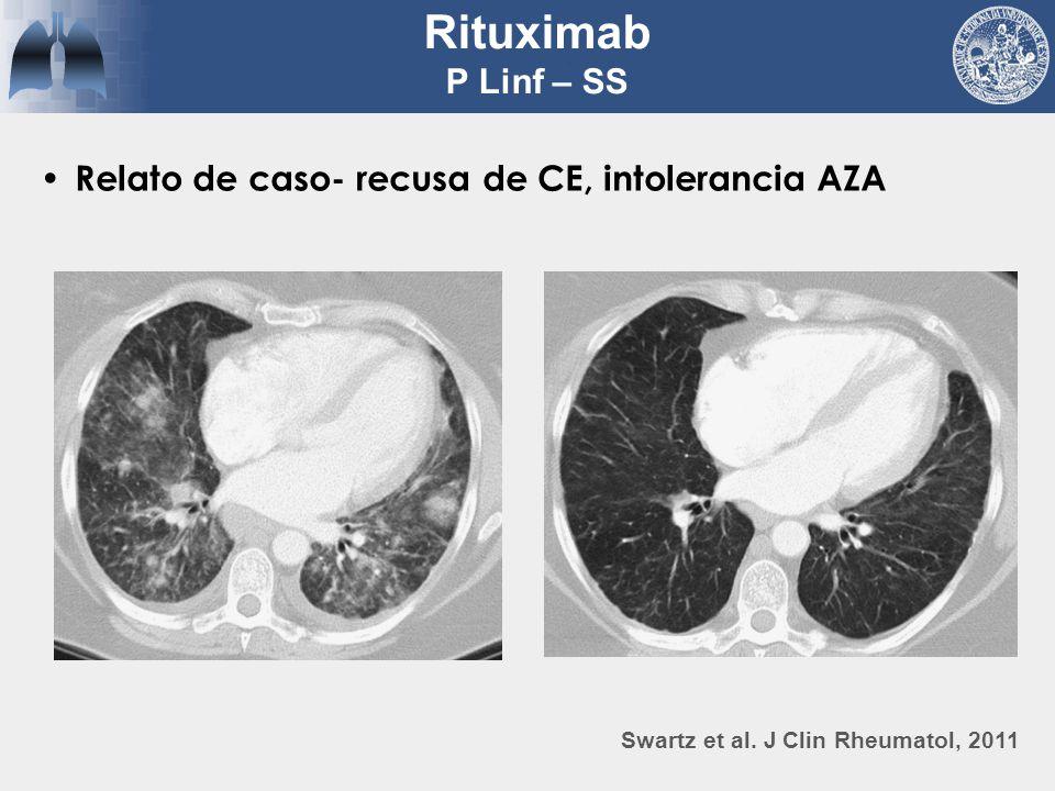 Rituximab P Linf – SS Relato de caso- recusa de CE, intolerancia AZA