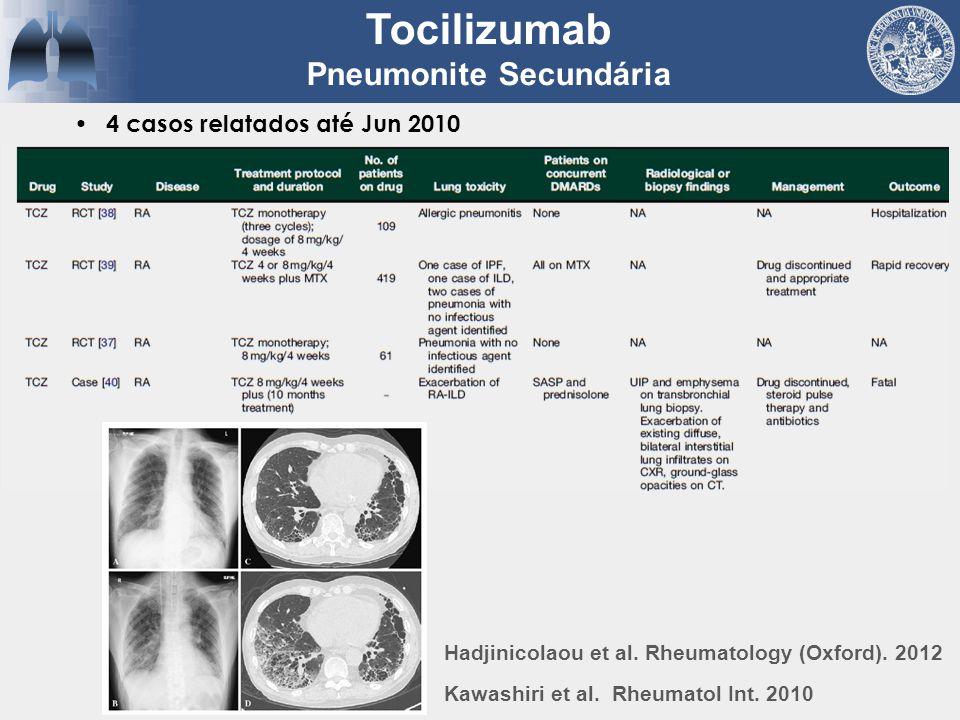 Pneumonite Secundária
