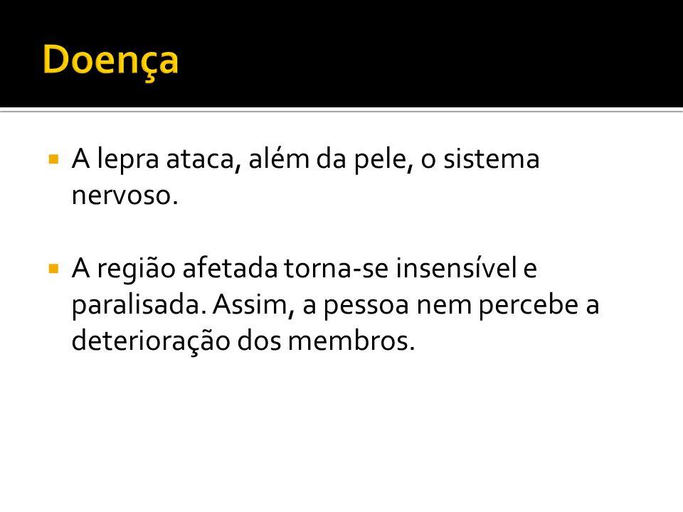 Doença A lepra ataca, além da pele, o sistema nervoso.