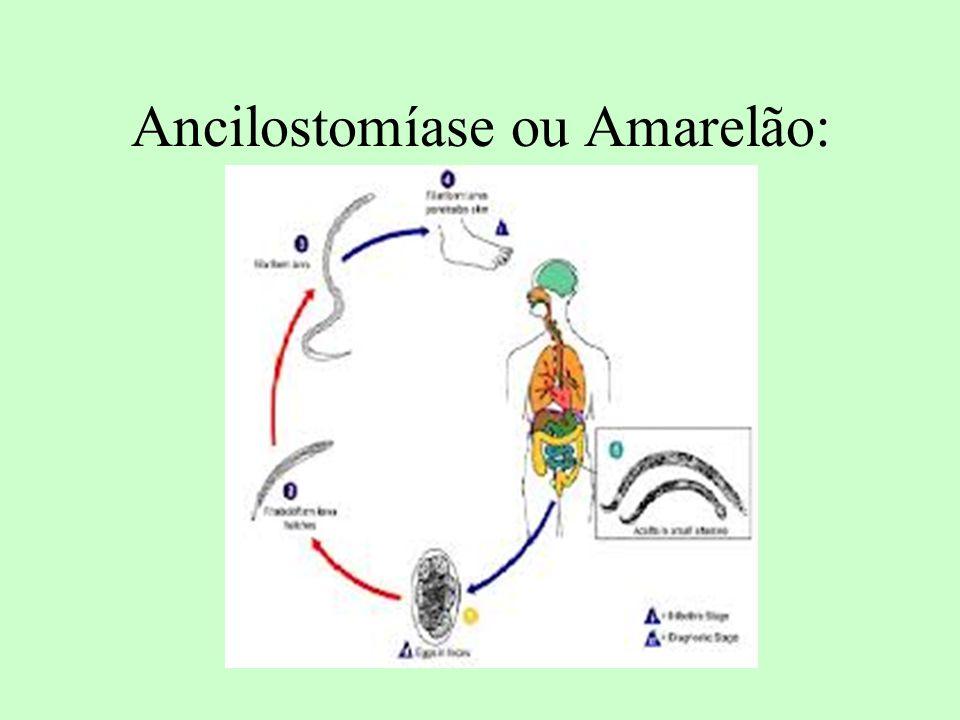 Ancilostomíase ou Amarelão: