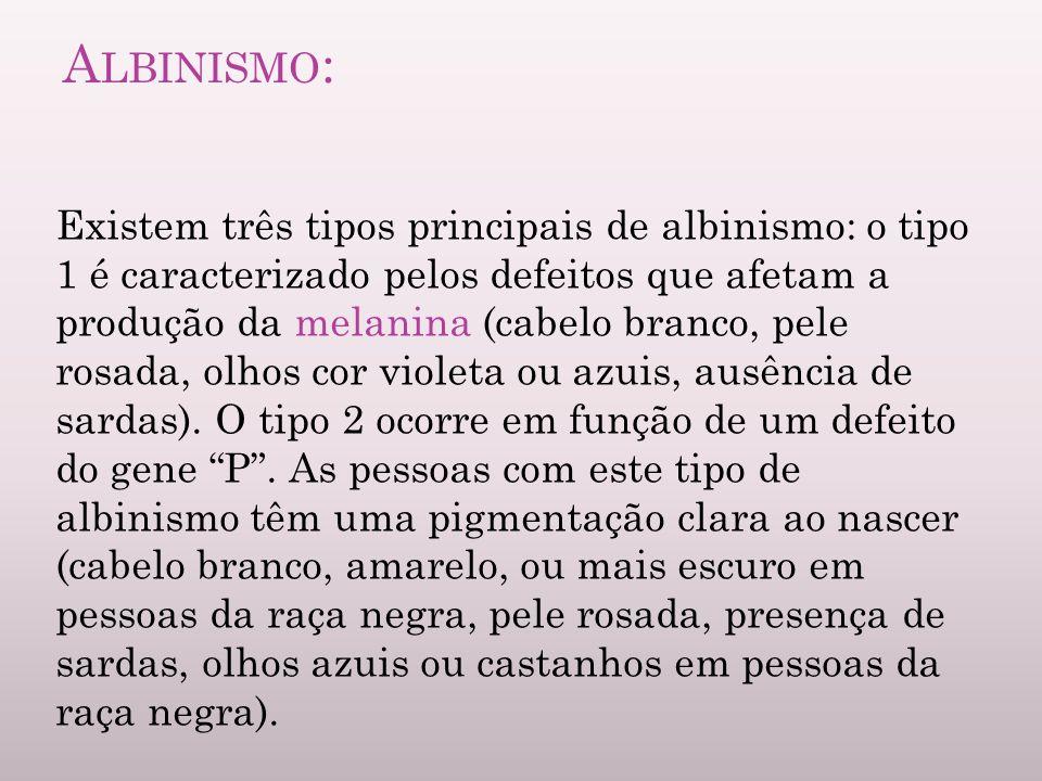 Albinismo: