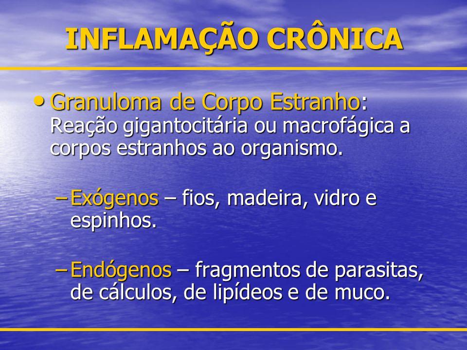 INFLAMAÇÃO CRÔNICA Granuloma de Corpo Estranho: Reação gigantocitária ou macrofágica a corpos estranhos ao organismo.