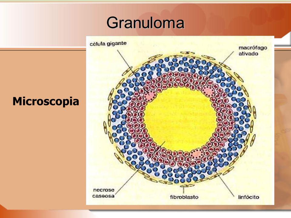 Granuloma Microscopia