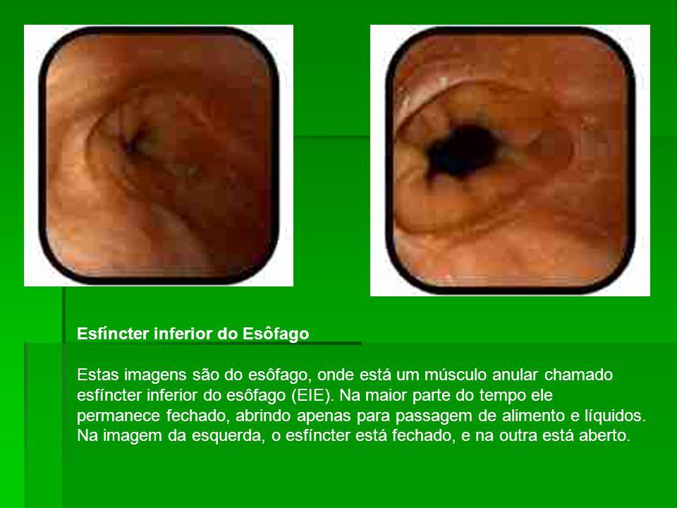 Esfíncter inferior do Esôfago Estas imagens são do esôfago, onde está um músculo anular chamado esfíncter inferior do esôfago (EIE).