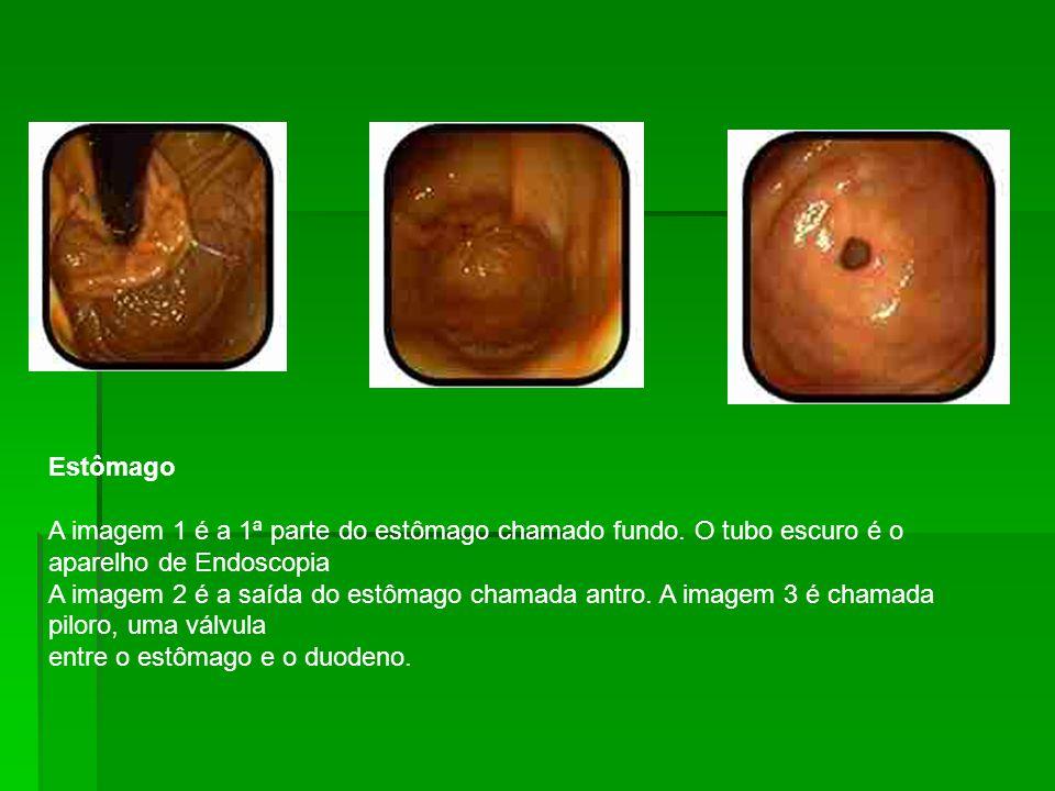 Estômago A imagem 1 é a 1ª parte do estômago chamado fundo