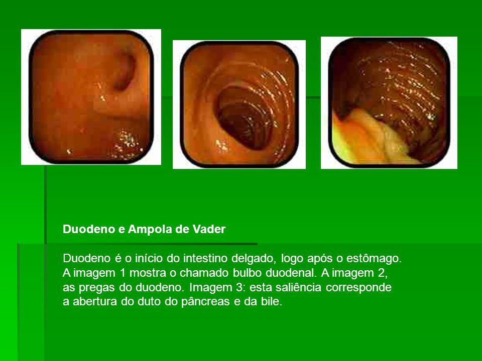 Duodeno e Ampola de Vader Duodeno é o início do intestino delgado, logo após o estômago.