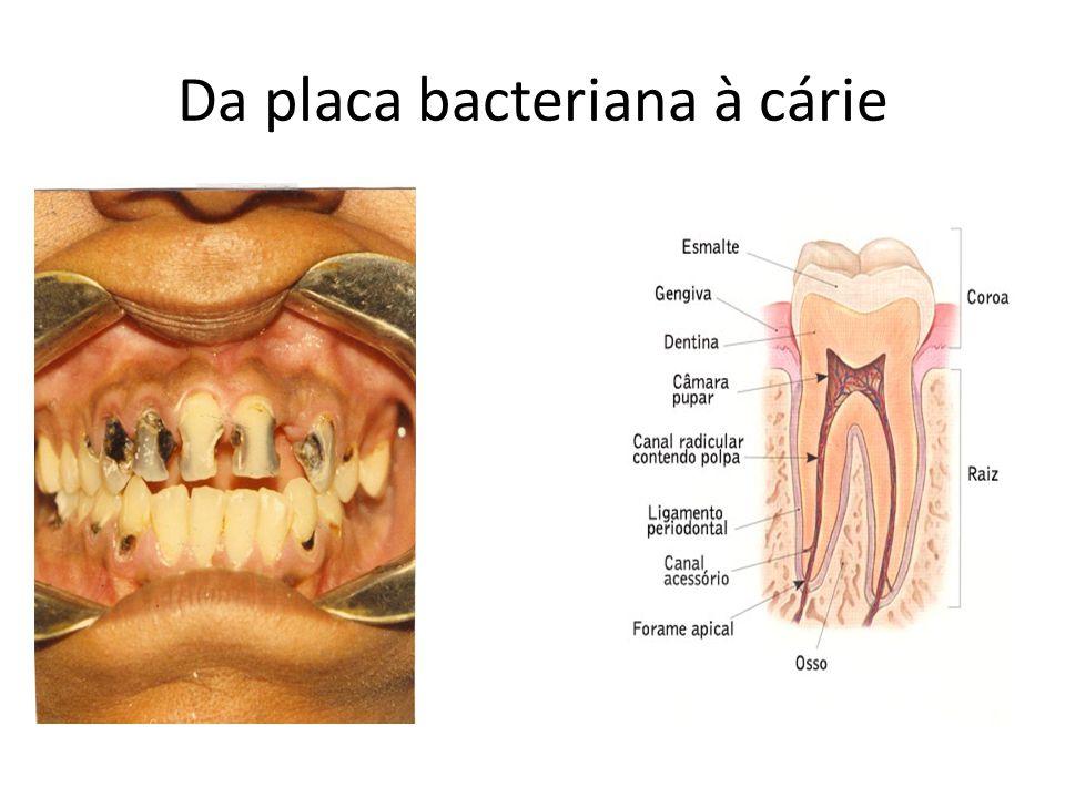 Da placa bacteriana à cárie