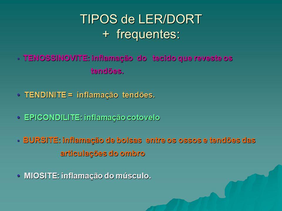 TIPOS de LER/DORT + frequentes: