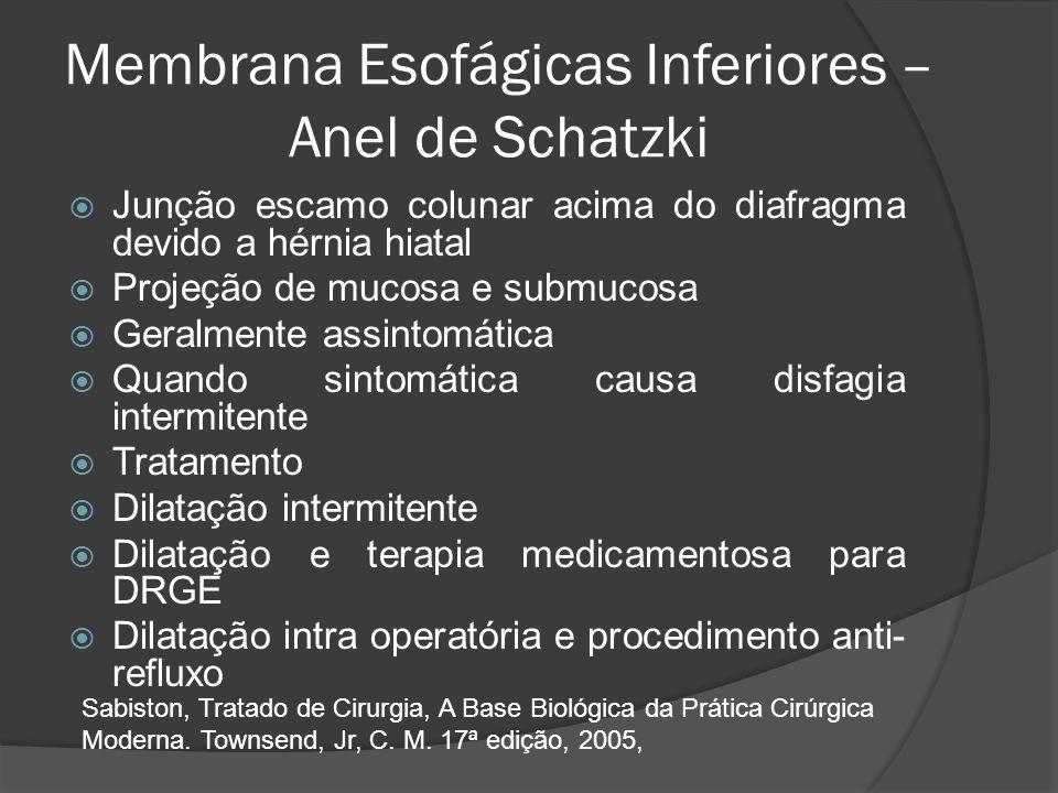 Membrana Esofágicas Inferiores – Anel de Schatzki