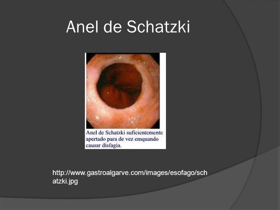 Anel de Schatzki http://www.gastroalgarve.com/images/esofago/schatzki.jpg