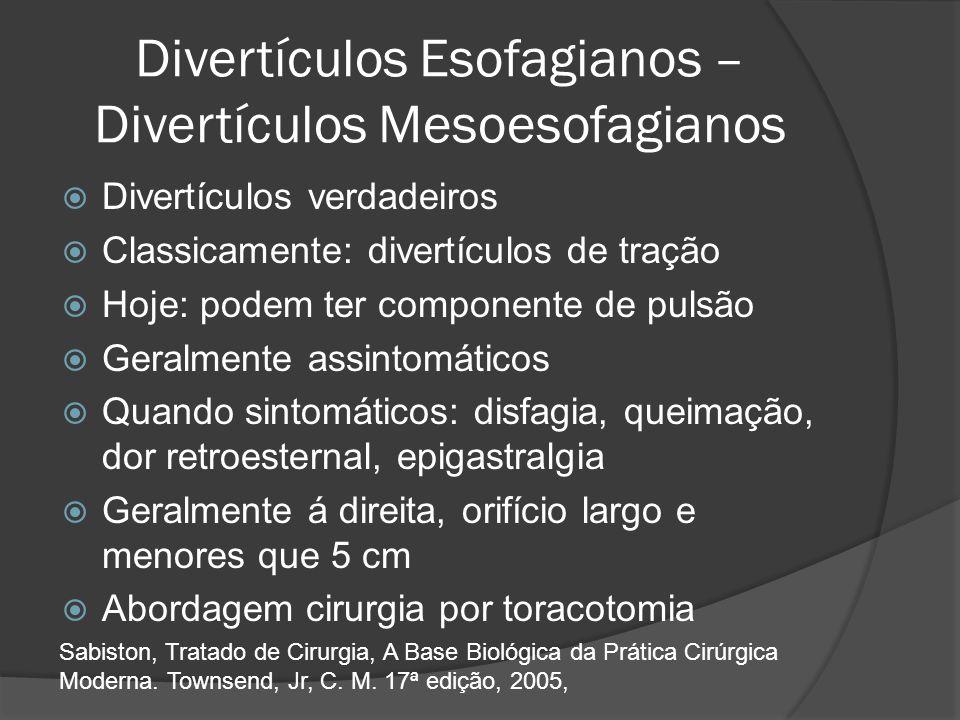 Divertículos Esofagianos – Divertículos Mesoesofagianos