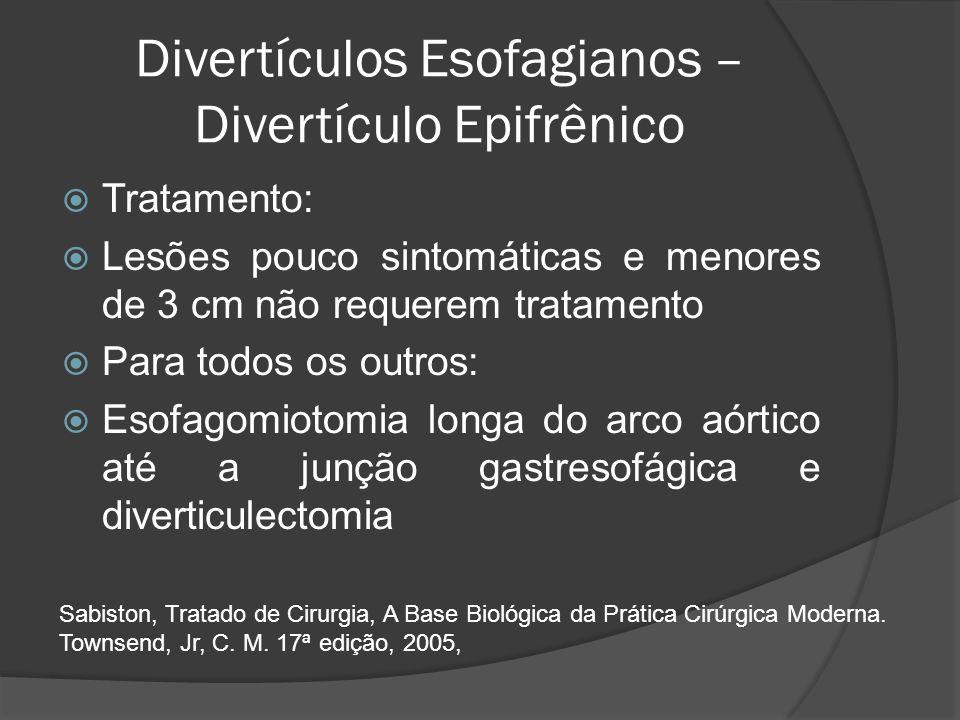 Divertículos Esofagianos – Divertículo Epifrênico