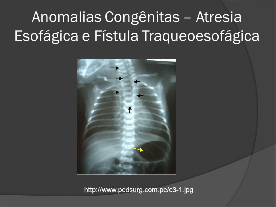 Anomalias Congênitas – Atresia Esofágica e Fístula Traqueoesofágica