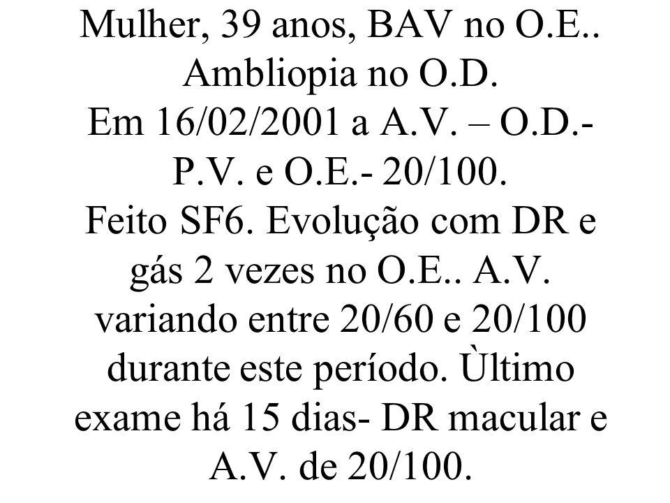 Mulher, 39 anos, BAV no O. E. Ambliopia no O. D. Em 16/02/2001 a A. V