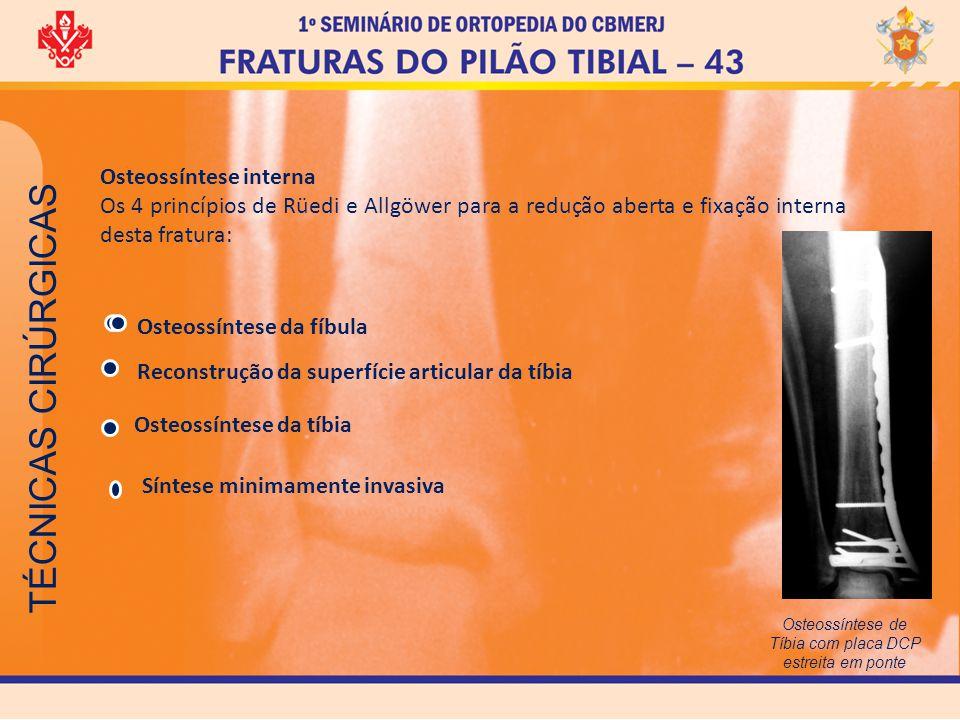TÉCNICAS CIRÚRGICAS Osteossíntese interna