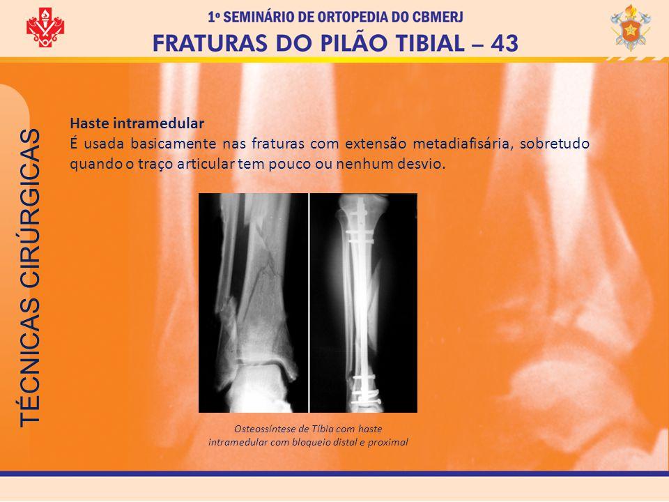 TÉCNICAS CIRÚRGICAS Haste intramedular