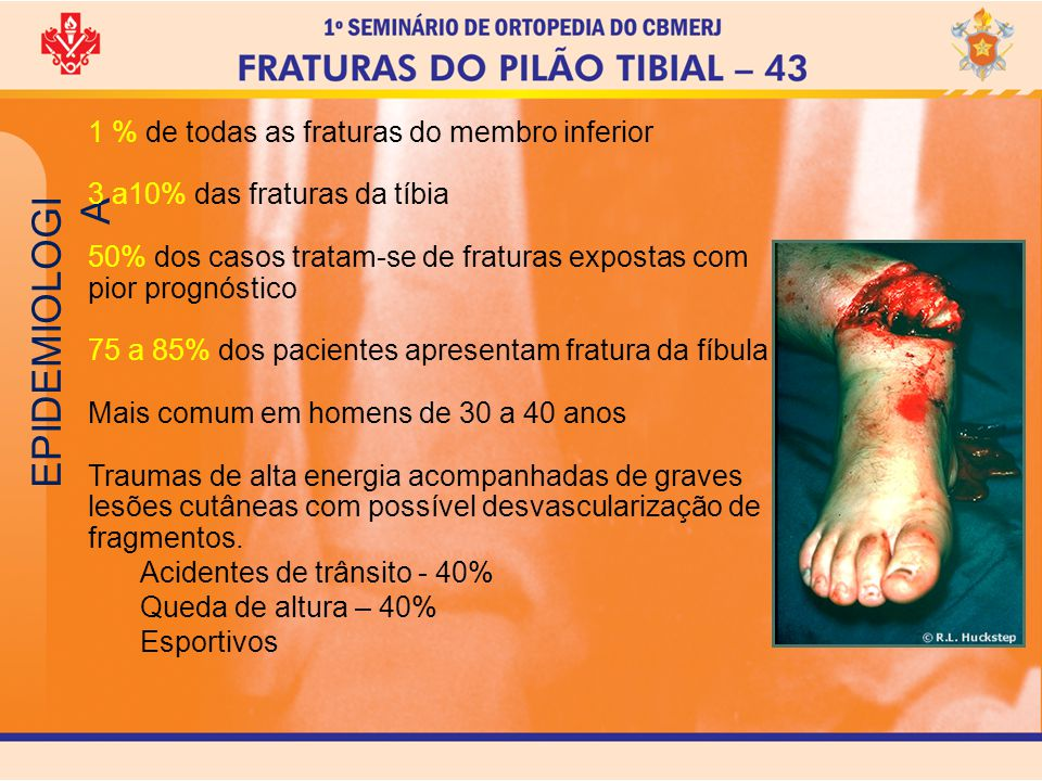 EPIDEMIOLOGIA 1 % de todas as fraturas do membro inferior