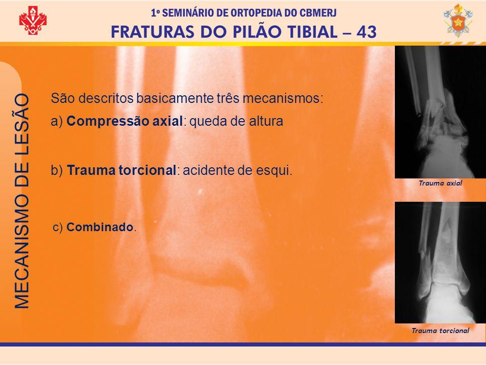 MECANISMO DE LESÃO São descritos basicamente três mecanismos:
