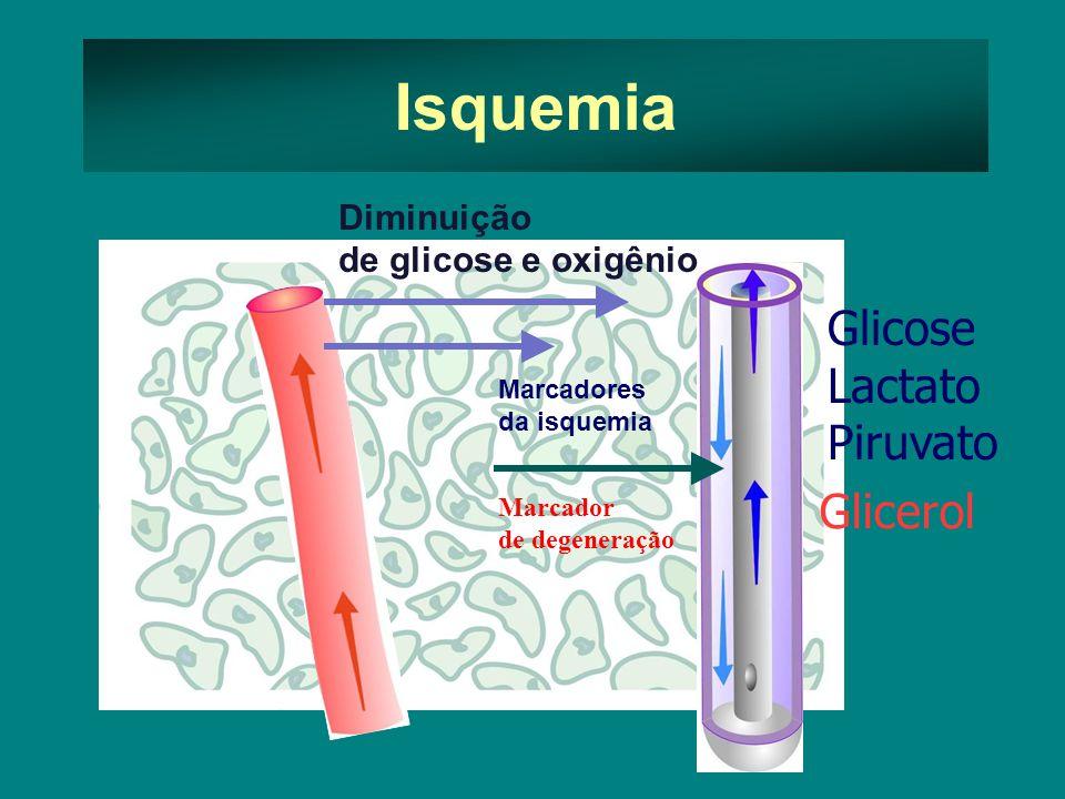 Isquemia Glicose Lactato Piruvato Glicerol Diminuição