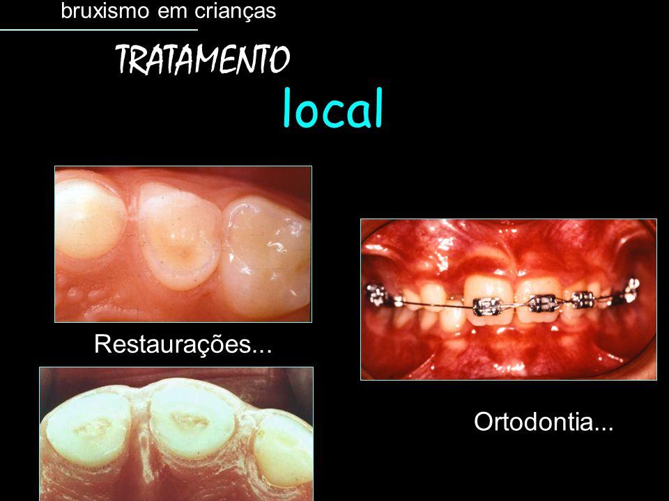 bruxismo em crianças TRATAMENTO local Restaurações... Ortodontia...