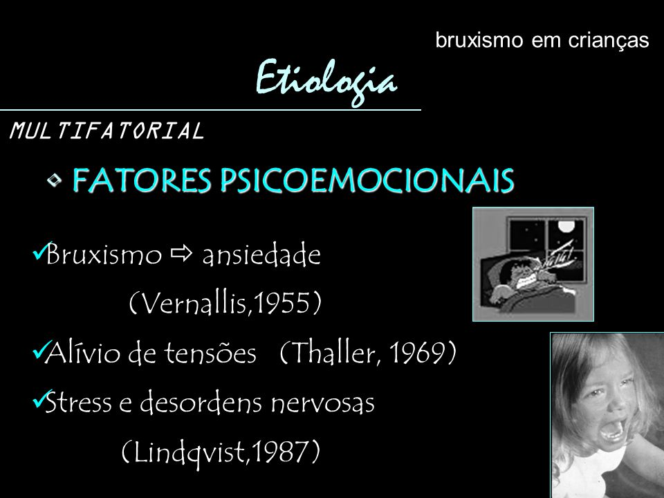 Etiologia FATORES PSICOEMOCIONAIS Bruxismo  ansiedade