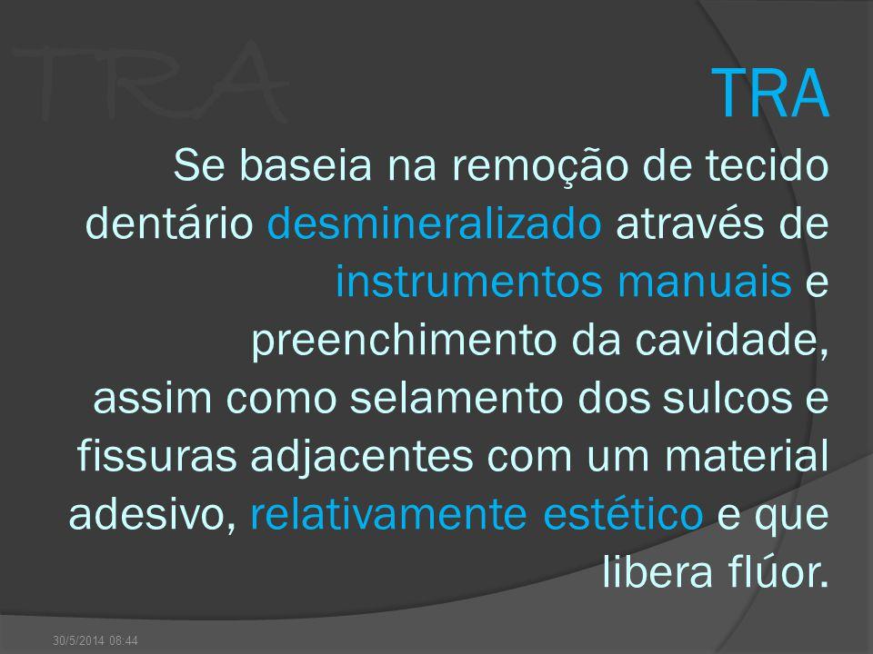 TRA Se baseia na remoção de tecido dentário desmineralizado através de instrumentos manuais e preenchimento da cavidade, assim como selamento dos sulcos e fissuras adjacentes com um material adesivo, relativamente estético e que libera flúor.