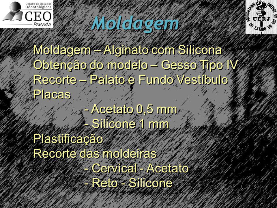 Moldagem Moldagem – Alginato com Silicona