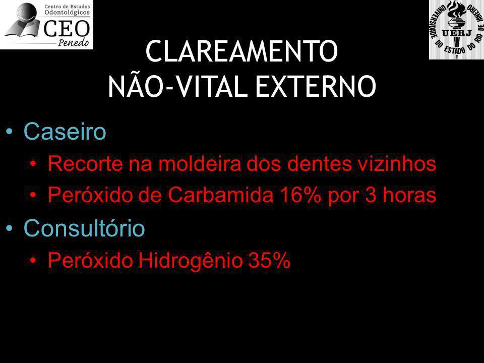 CLAREAMENTO NÃO-VITAL EXTERNO Caseiro Consultório