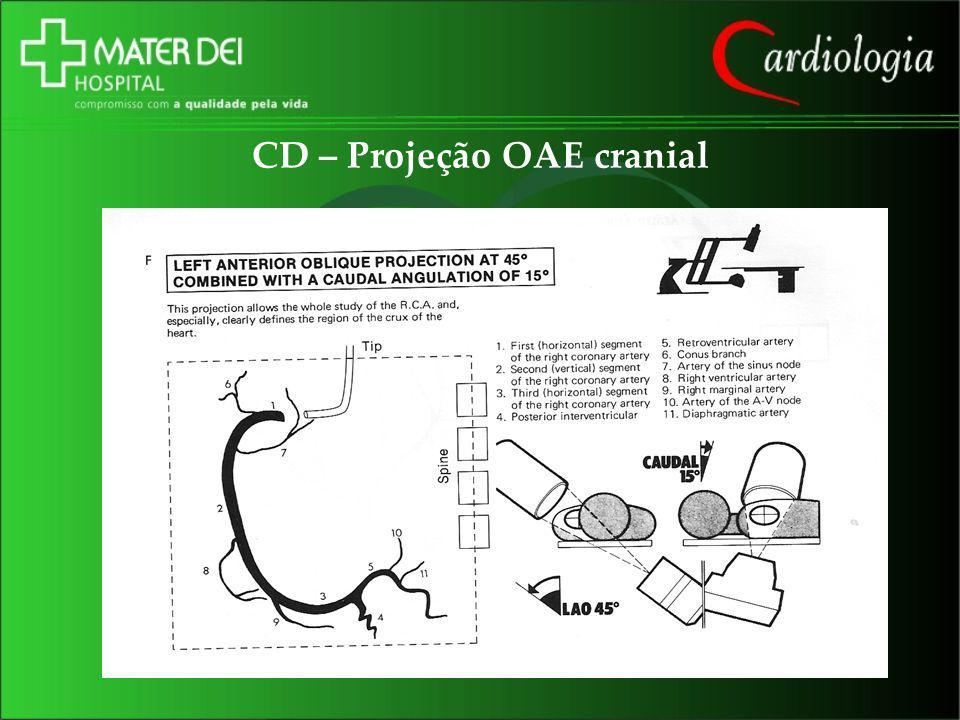 CD – Projeção OAE cranial