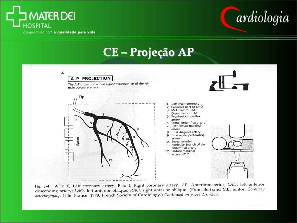 CE – Projeção AP