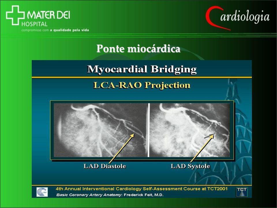 Ponte miocárdica