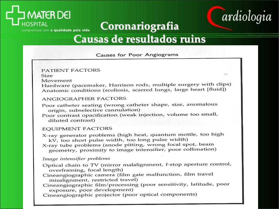 Coronariografia Causas de resultados ruins