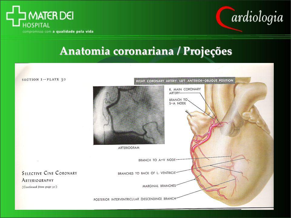 Anatomia coronariana / Projeções