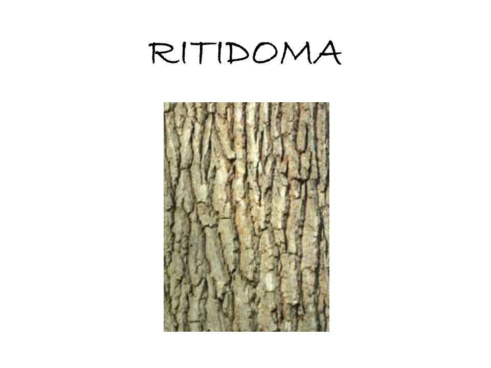 RITIDOMA