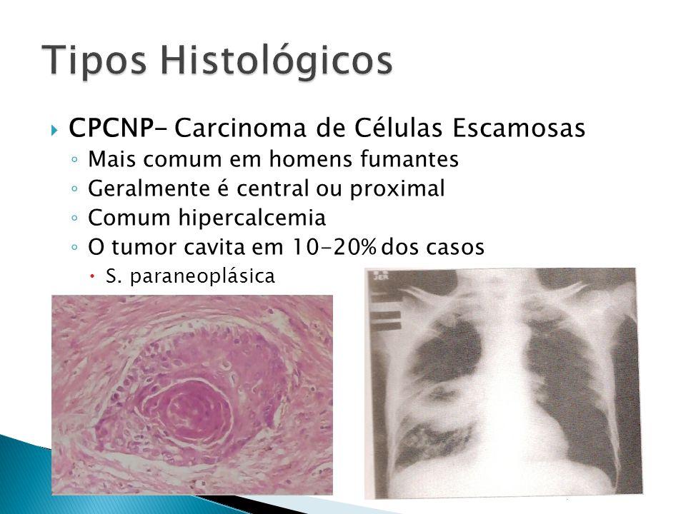 Tipos Histológicos CPCNP- Carcinoma de Células Escamosas