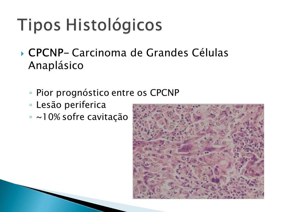 Tipos Histológicos CPCNP- Carcinoma de Grandes Células Anaplásico